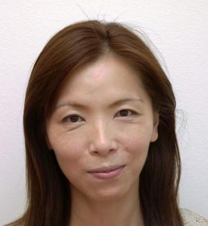 くすみ改善・小顔効果事例1 (ビフォーアフター)